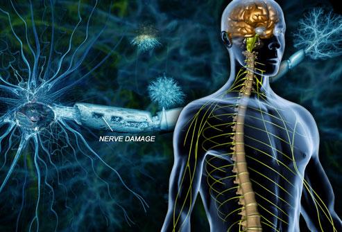 اعراض مرض التصلب